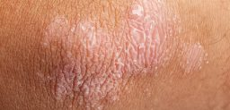 Psoriasis on elbow skin closeup