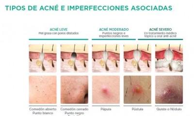Tipos de acné e imperfecciones asociadas