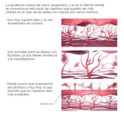 causas rosacea