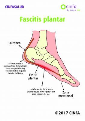 fascitis plantar_Cinfasalud