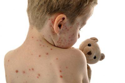 qué es el sarampión