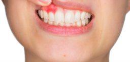 ¿Qué síntomas presenta la periodontitis?
