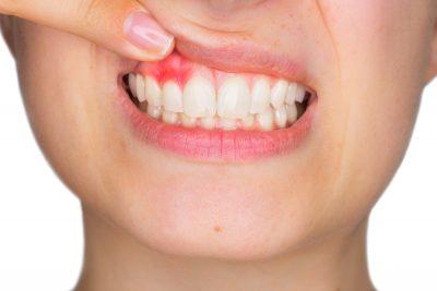 ¿Qué síntomas tiene la periodontitis?