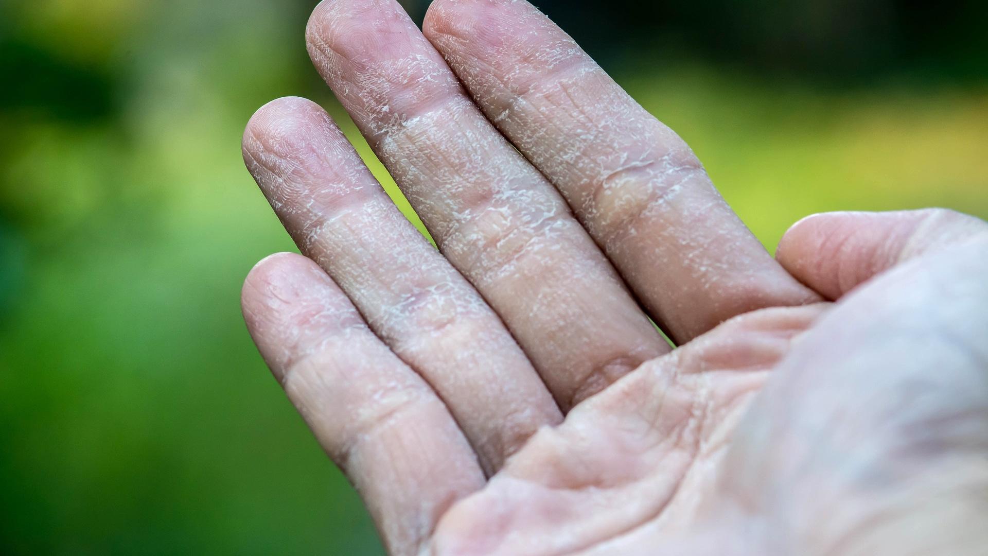 Qué es la dishidrosis palmar y plantar o eczema dishidrótico ...